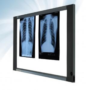 Slim x-ray film viewe Cablas