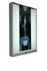 X-ray film viewer standard series Cablas